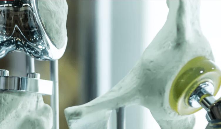 Liga de titânio no osso