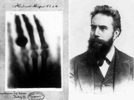 Wilhelm Conrad Röntgen e a 1ª radiografia da História