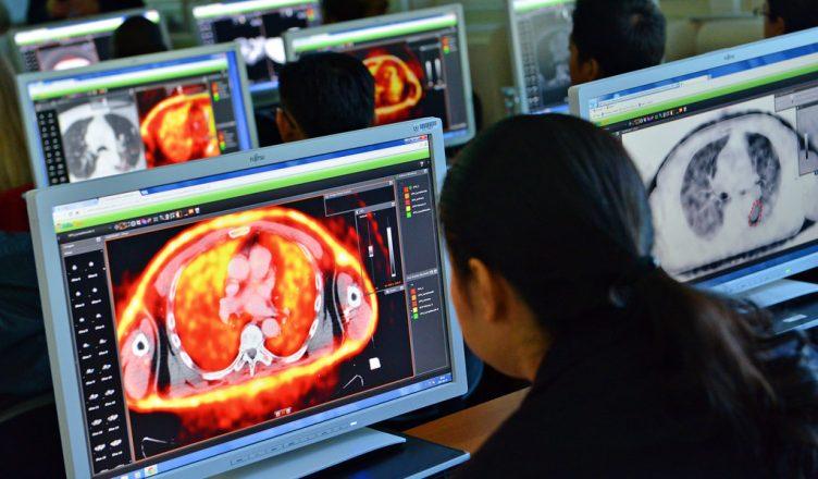 radioterapia - imagem